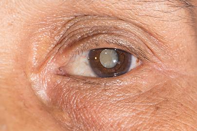 Tratamiento Efectivo de Cataratas en Omnilaser
